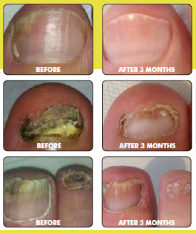 Accredited specialist laser treatment for fungal nail disease ...